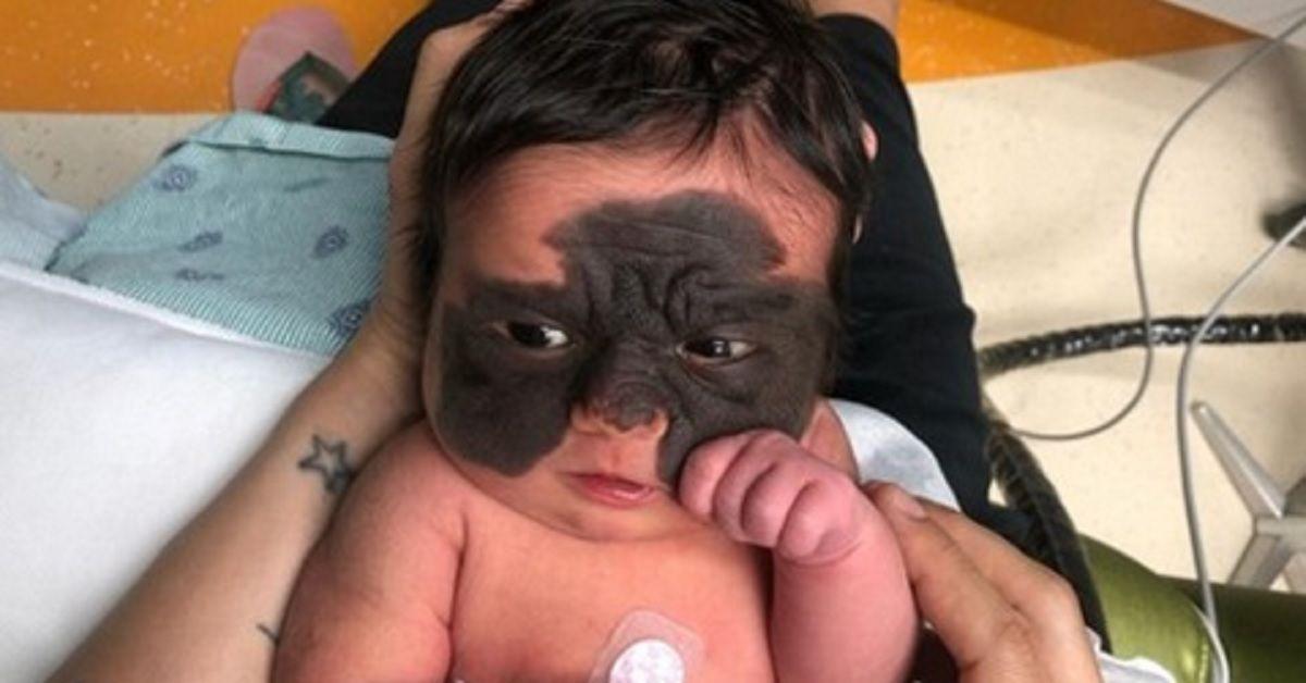 La mamma ha un'idea per evitare che la figlia venga presa in giro,  perchè  nata con una rara malattia della pelle