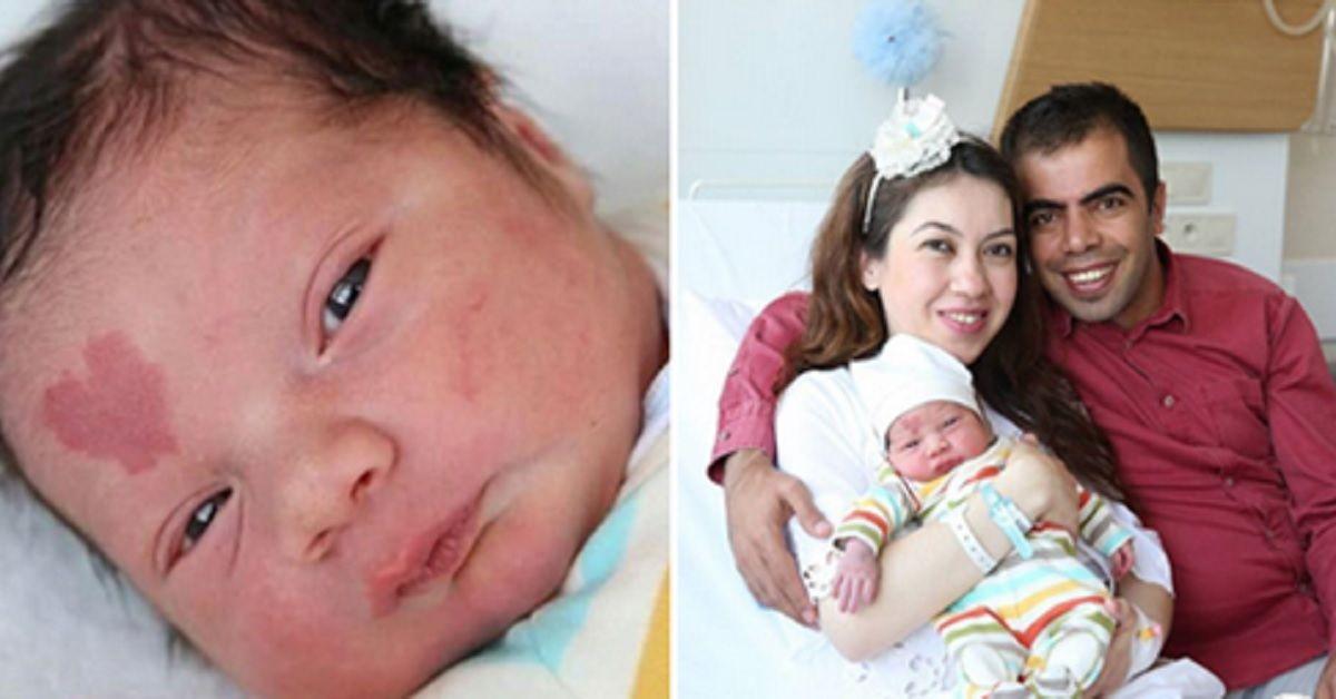 """Nasce con una voglia a forma di cuore sulla fronte e viene soprannominato """"lovebaby"""", Ecco com'è a distanza di 4 anni"""
