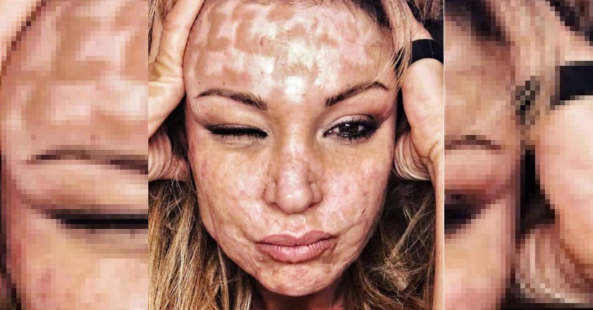 """Fu sfigurata dal chirurgo nel 2012. Com'è diventata oggi Cristina: """"Ora sono più forte"""""""