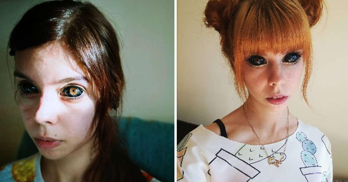Questa giovane donna sta quasi per perdere la vista dopo essersi tatuata entrambi gli occhi