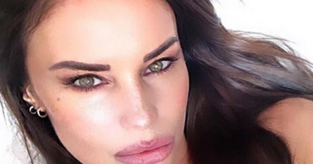 Antonella Mosetti dopo aver rimosso l'acido ialuronico dalle labbra, si concede un nuovo trattamento laser per il viso
