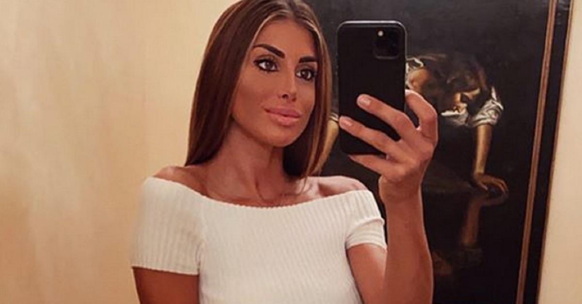 """Nicoletta Larini presa di mira per un trucco ritenuto pensante, mostra il suo viso con l'acne e scrive  """"prima di giudicare pensate sempre"""""""