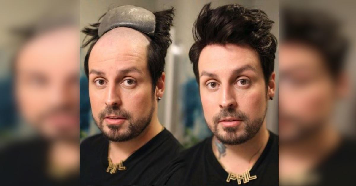 17 uomini trasformati dopo un trapianto di capelli. Il prima e il dopo