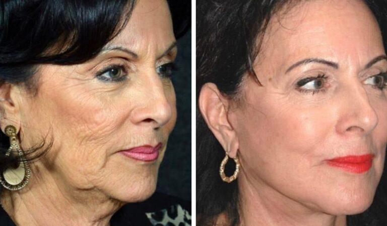 16 casi in cui la chirurgia plastica ha aiutato le persone a cambiare il proprio aspetto e ad amarsi
