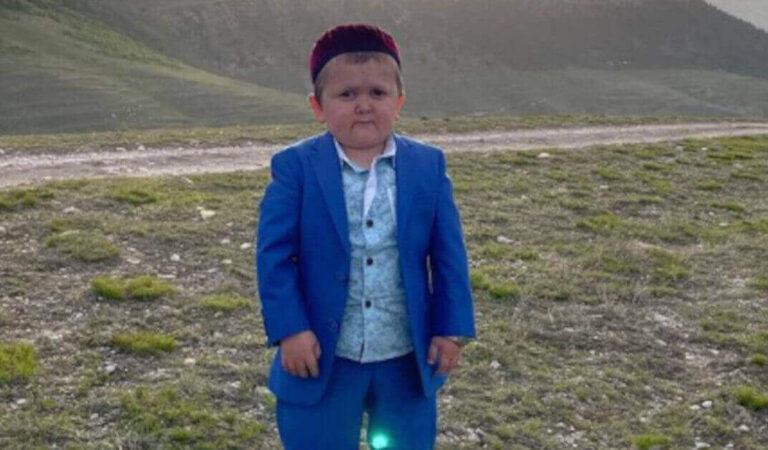 Hasbullah Magomedov, il 18enne russo che dimostra 5 anni a causa di un'alterazione genetica