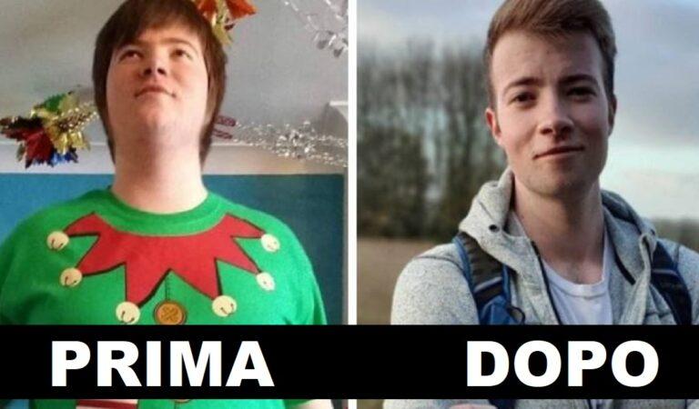 Foto prima e dopo l'adolescenza: 15  persone completamente trasformate