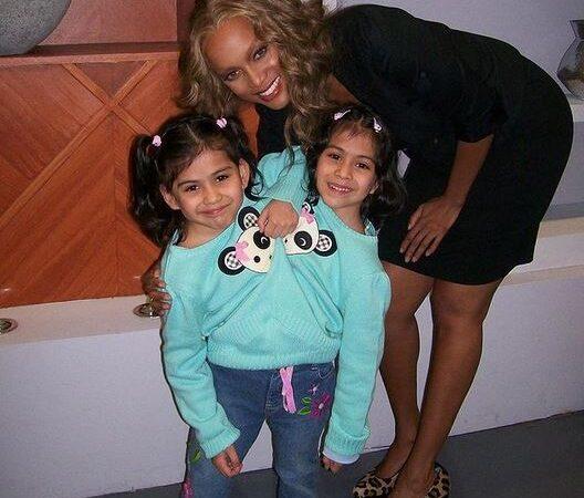 Carmen e Lupita, le gemelle siamese che da 19 anni condividono lo stesso corpo