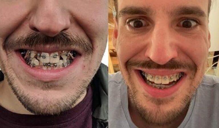 14 persone che hanno condiviso la trasformazione del sorriso dopo le sedute dal dentista